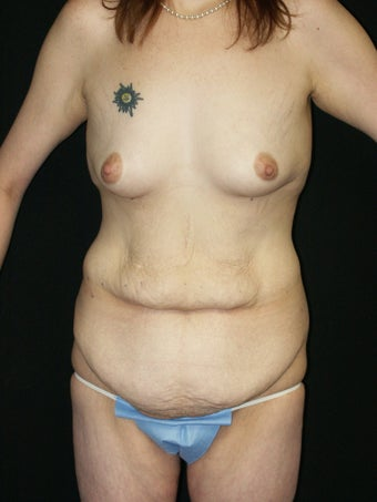 Belt Lipectomy