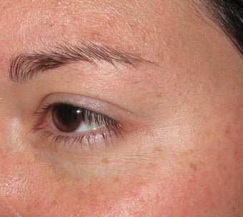 Botox Cosmetic for Crow's Feet wrinkles