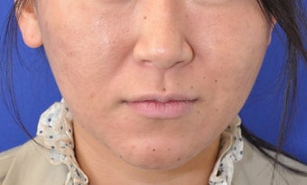Botox Facial Contouring/Jawline Reduction