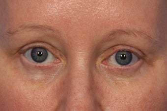Botox to Crows Feet and Between Eyes (Glabella)