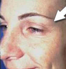 Botox Cosmetic - Crow's Feet