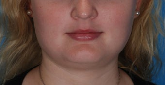 Botox for enlarged jaw muscles
