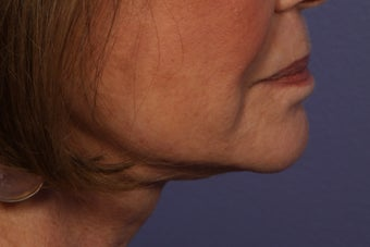 Botox to Neck (Platysmal Band Muscles)