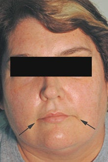 Botox and Restylane for Mouth Frown
