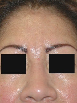 Botox for frown line (glabella)