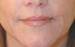 Lip enhancement (smoker's lines)
