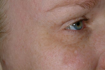 Non-surgical eye rejuvenation