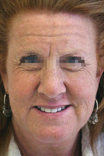 Botox for Forehead, Glabella and Crows Feet