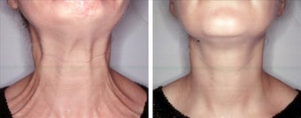 Botox for platysmaplasty