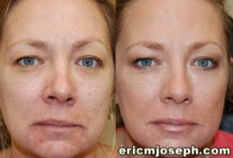 Non-Surgical Facial Rejuvenation with BOTOX Cosmetic and Silikon-1000