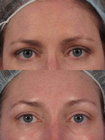 "Botox to glabella and ""crow's lines"""