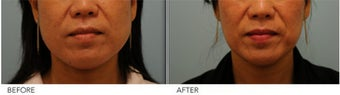 Botox Jaw (masseter) reduction
