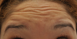 Botox to forehead and glabella