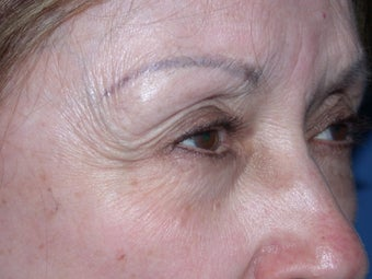 Before & After Botox Treatment