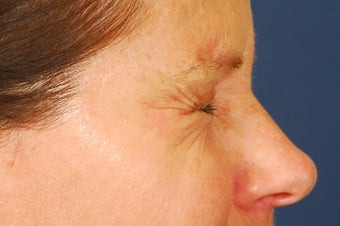 Botox Treatment of crow's feet