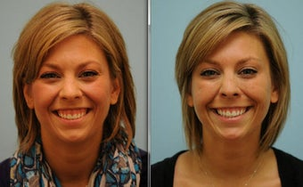 Gummy Smile Correction using Botox