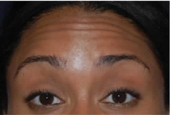 Botox to Treat Horizontal Forehead Lines