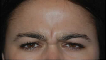 Botox to Treat Frown Lines and Vertical Lines Between Eyebrows