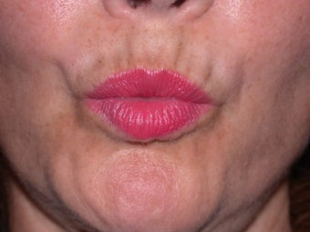 Before and After Botox to Upper Lip Lines