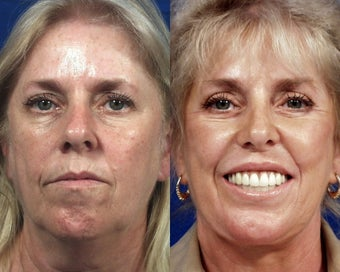 Botox with Facelift, Rhinoplasty, Laser Resurfacing, and Dermal Fillers