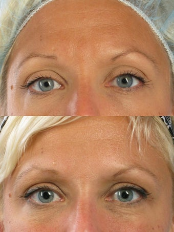 Botox for frown lines and crow's feet