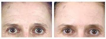Botox and Browlift