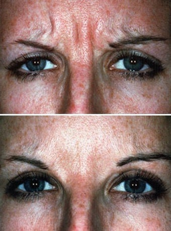 Botox showing Facial Expression Before & After