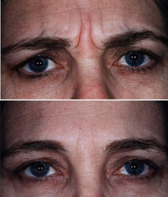 Showing Expression Before and After Botox