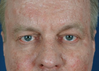 Man in 50's seek non-surgical facial rejuvention