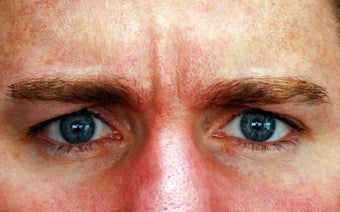 Botox Treatment of the Glabella ( 11s )