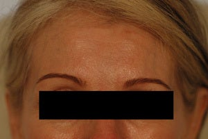 Coreecting Asymmetry with Botox (Dysport Browlift).