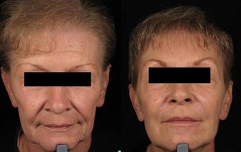 Botox and Sculptra