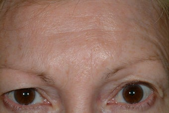 Brow asymmetry