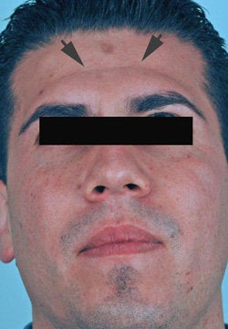 Botox treatment for forehead