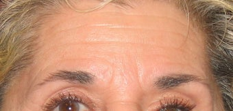 Botox Treatment for Forehead and Brow Wrinkles
