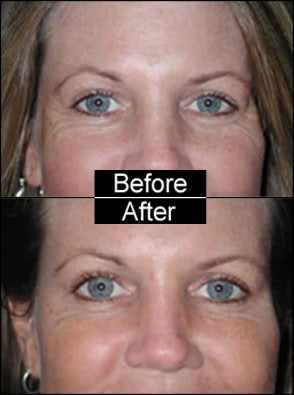 Botox for Crows Feet and Laugh Lines