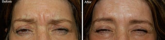 Botox treatment for brow wrinkles