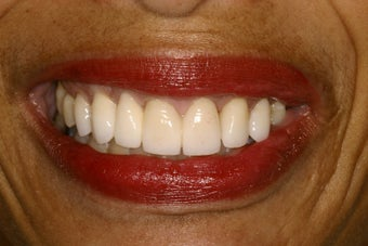 Combination Orthodontics and Porcelain Case