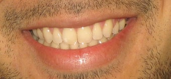 Braces used to correct crowding and bite