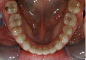 Orthodontic treatment without extraction of teeth