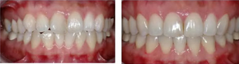 Orthodontic Braces - Crooked Teeth