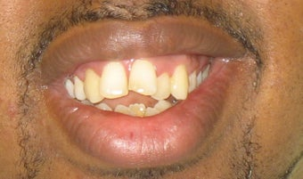 Braces: correction of openbite and dental crowding