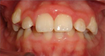 Braces in combination with orthognathic (jaw) surgery