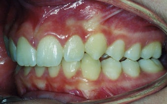 Orthodontic braces to correct a Class II malocclusion