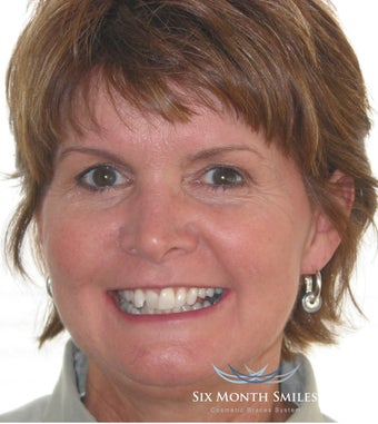 Six Month Smile/ Short term orthodontics