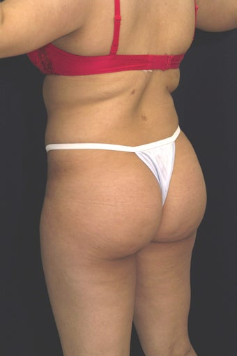 Fat injections to buttocks for Brazilian Butt Lift