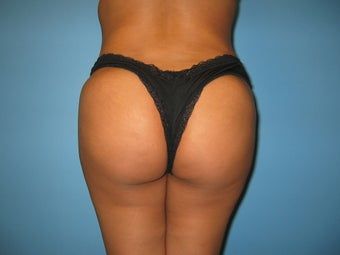 Buttock augmentation (Brazilian buttock lift)