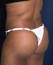 Brazilian Butt Lift (Butt Augmentation)