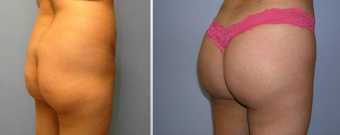 Brazilian Butt Lift (Fat Transfer)