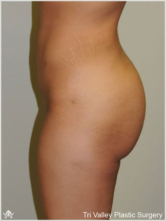 Brazilian Buttock Lift
